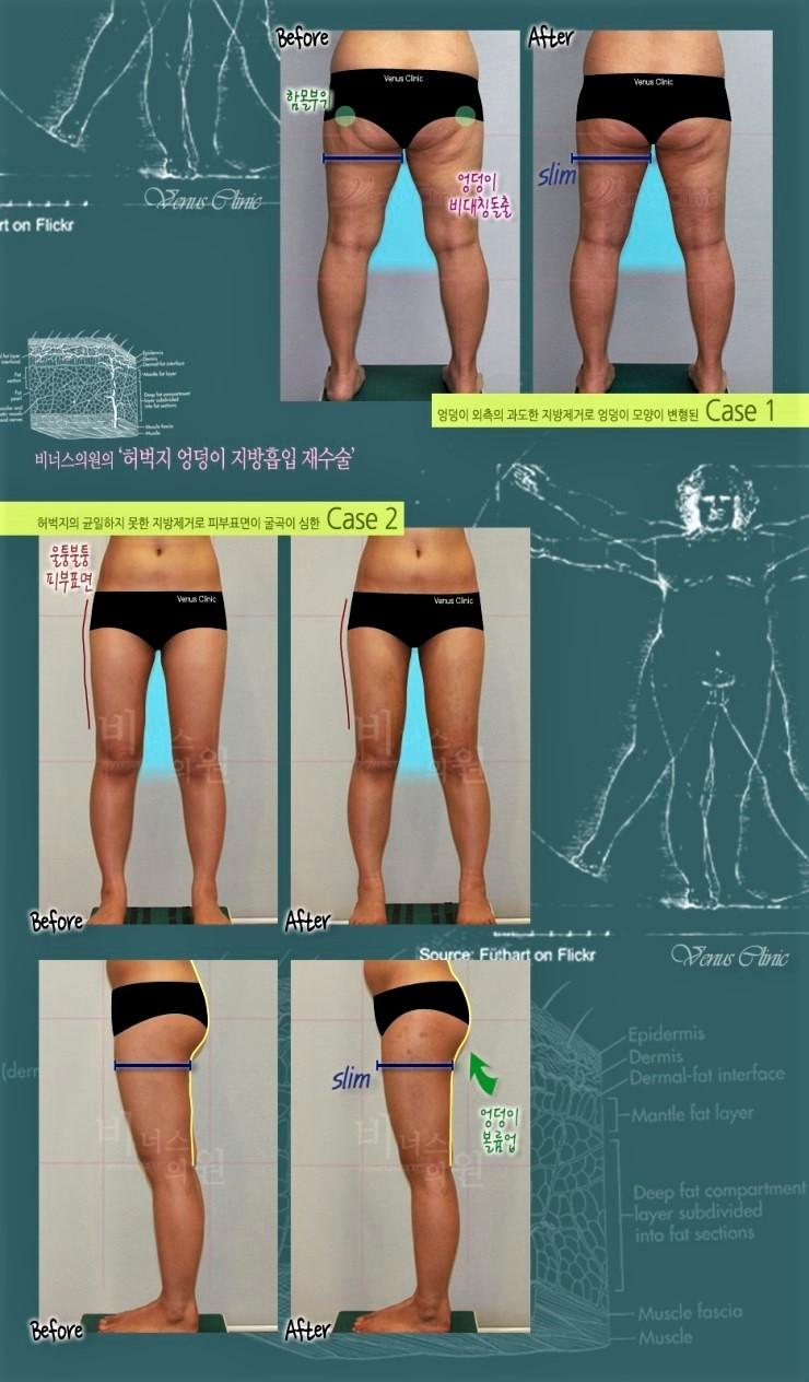 지방흡입_재수술-허벅지 (3).jpg