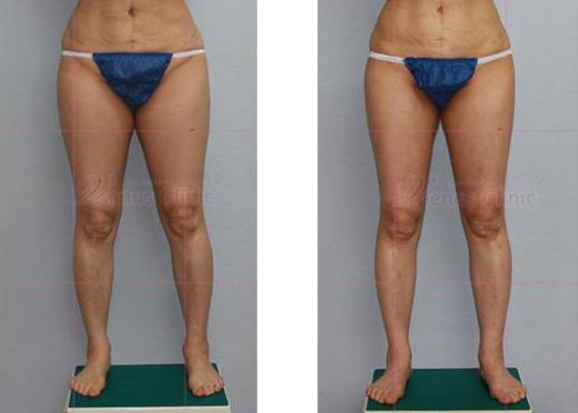 엉덩이 지방흡입 전후사진1