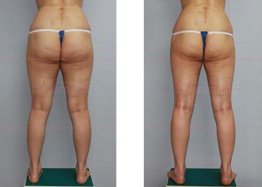 엉덩이 지방흡입 전후사진2