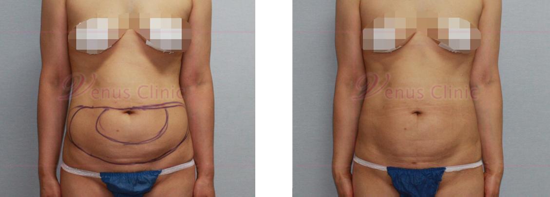 복부 미니지방흡입 사진1