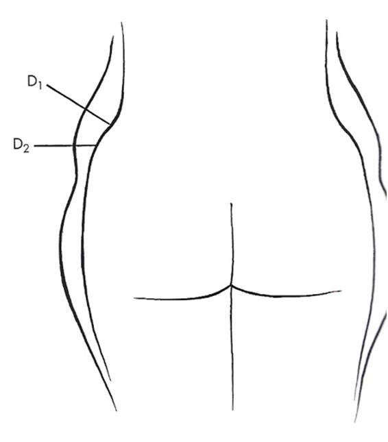 엉덩이 힙의 모식도
