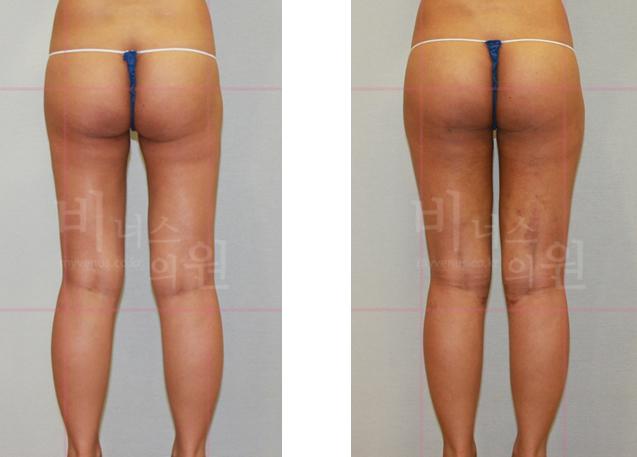 허벅지 지방흡입 재수술2