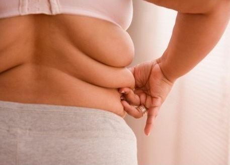 비만과 지방흡입