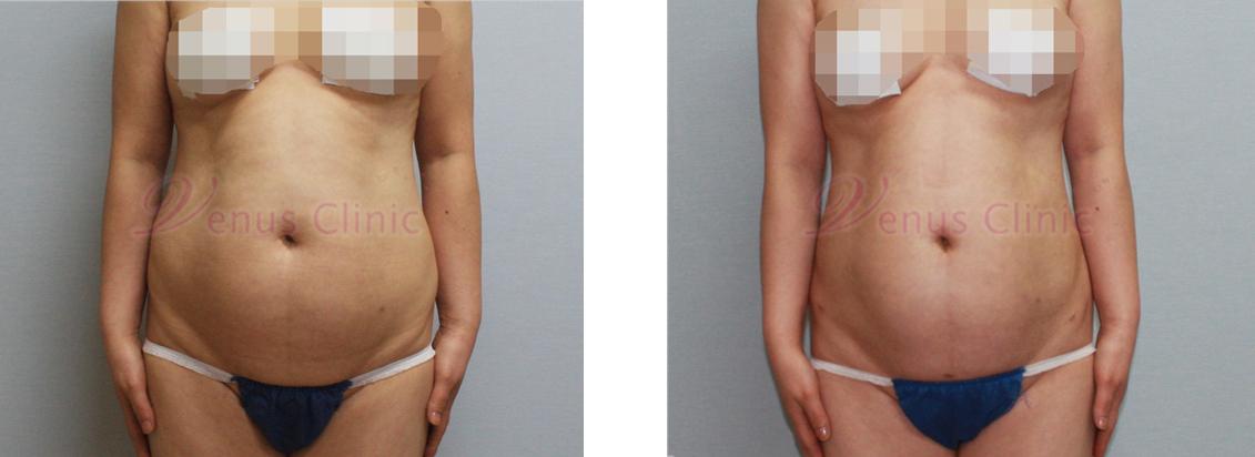 내장비만이 있으신 중년 여성분의 지방흡입 전후사진 1