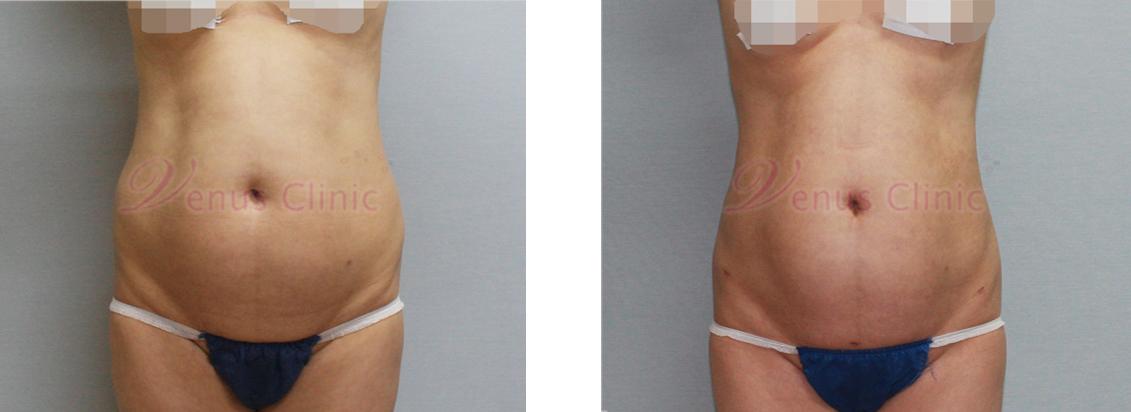 내장비만이 있으신 중년 여성분의 지방흡입 전후사진 2