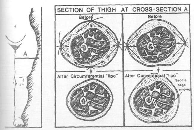 circum.jpg