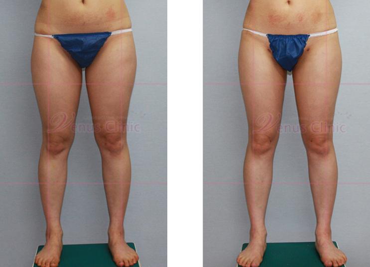 균형감있는 허벅지 지방흡입 전후사진