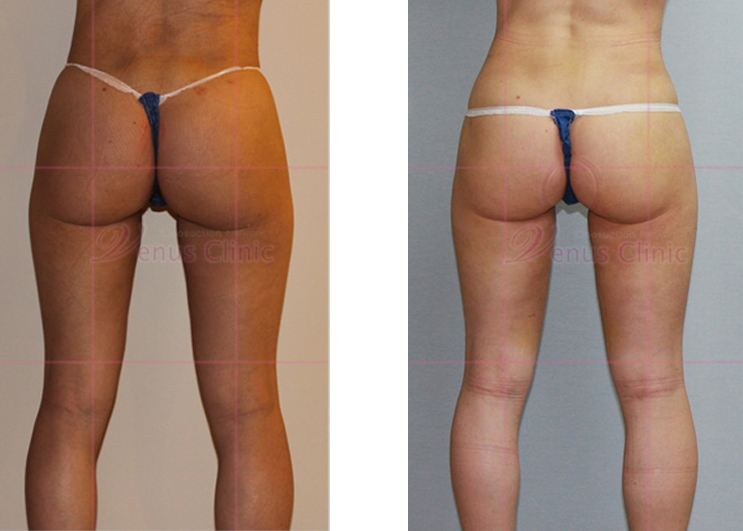 엉덩이와 허벅지 축소 지방흡입3