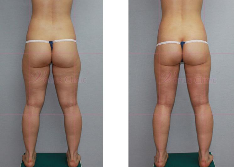 엉덩이와 허벅지 축소 지방흡입1