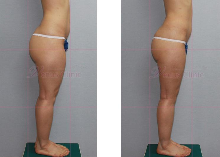 엉덩이와 허벅지 축소 지방흡입2