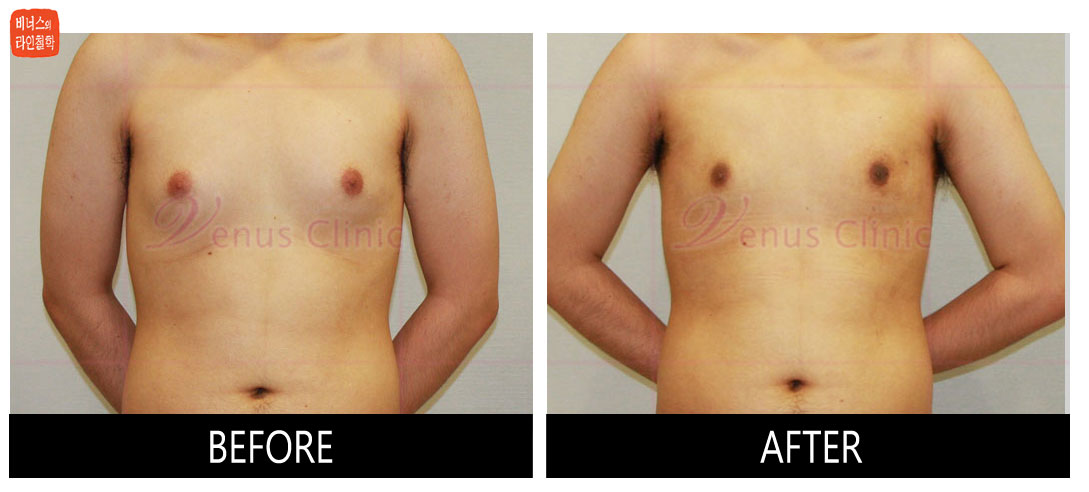 true_-gynecomastia1.jpg