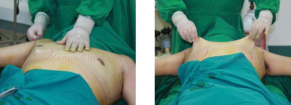 여유증 수술후 피부상태