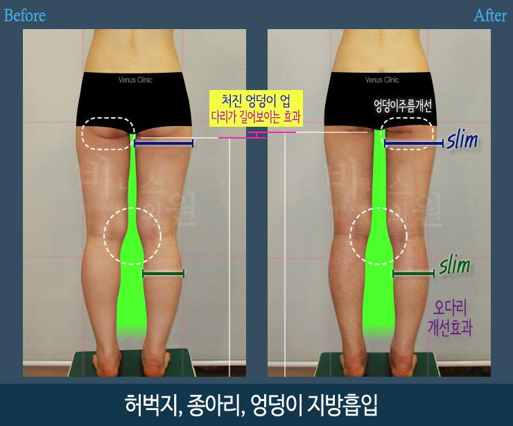 허벅지종아리지방흡입뒤-1.jpg