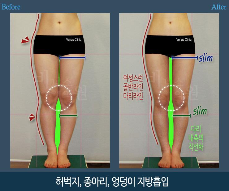 허벅지종아리지방흡입앞-1.jpg