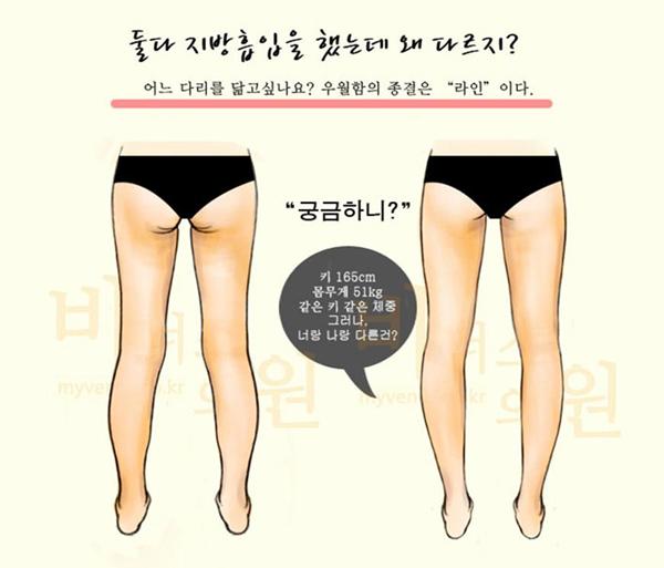 엉덩이지방흡입3.jpg
