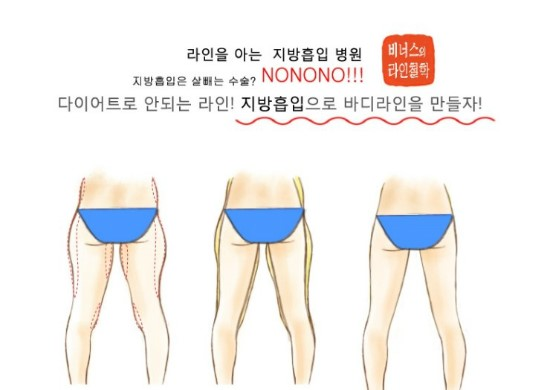 엉덩이지방흡입5.jpg