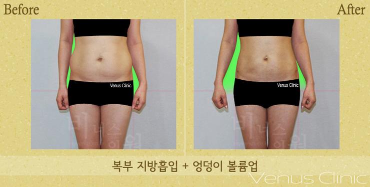 지방흡입복부엉덩이앞-.jpg