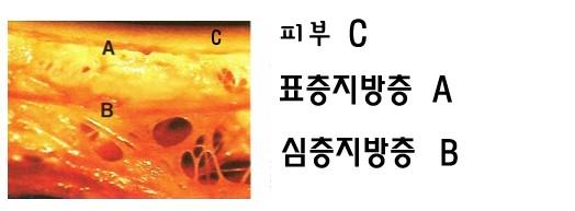 지방흡입 (21).jpg