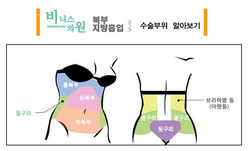 비너스의-복부지방흡입-부위-섹션.jpg