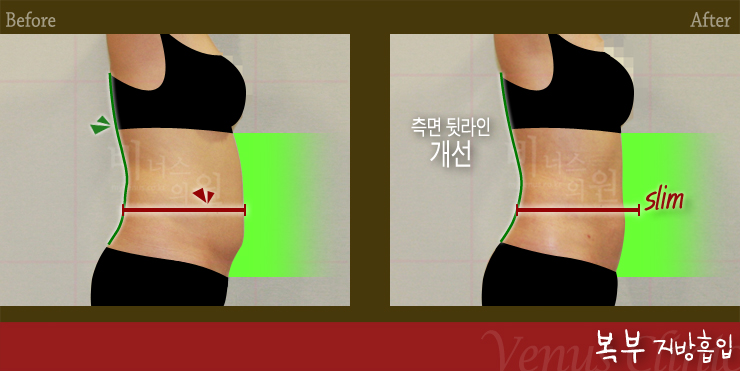 복부지방흡입옆.jpg