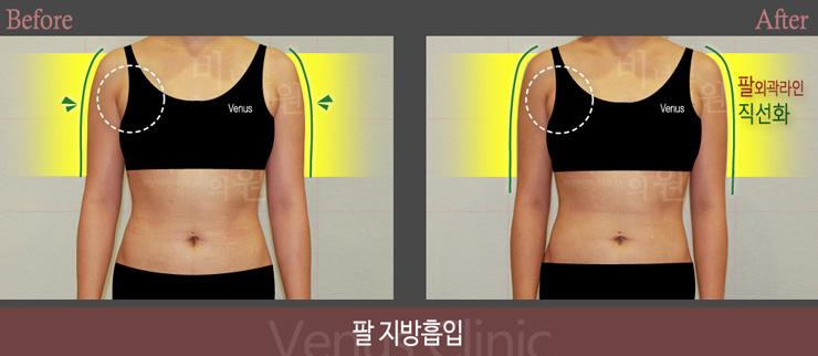 팔지방흡입 앞-1.jpg
