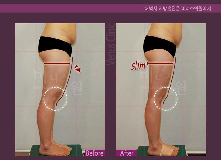 허벅지 지방흡입옆-.jpg
