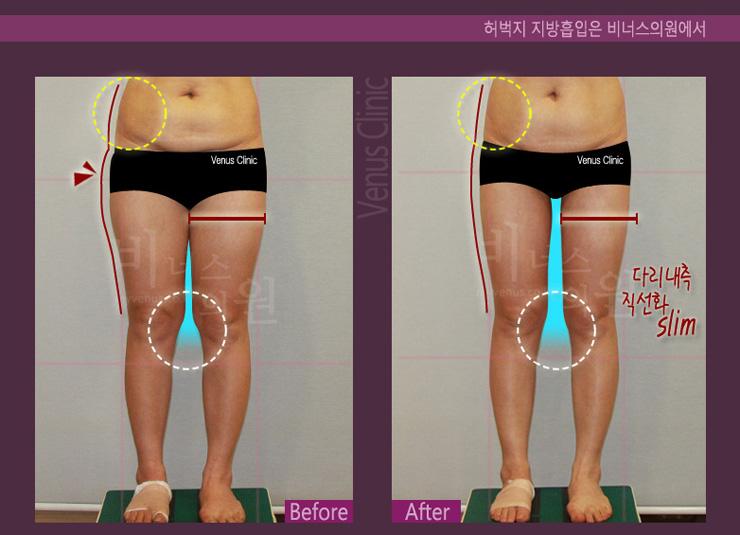 허벅지 지방흡입앞-.jpg