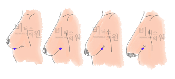가슴단계.jpg