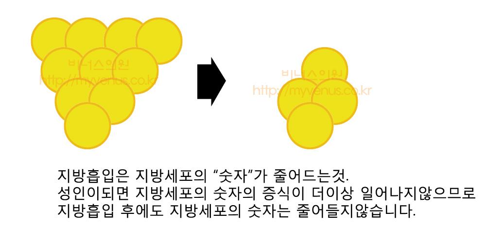 지방흡입 다이어트차이 (3).jpg