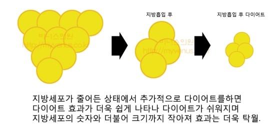 부분지방흡입3.JPG