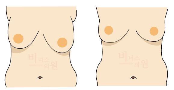 짝가슴 교정.jpg