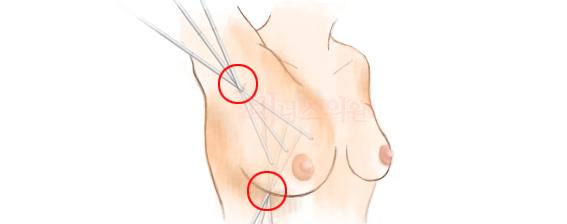 비너스의원 가슴축소수술.jpg
