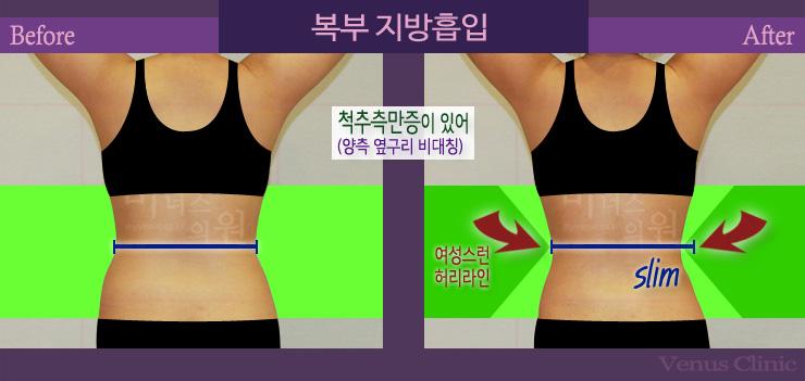 복부지방흡입뒤.jpg