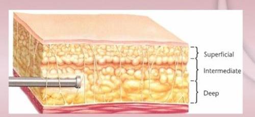 지방흡입재수술3.jpg