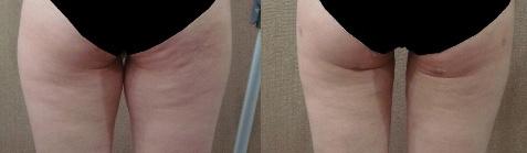 엉덩이인대손상이미지2.jpg