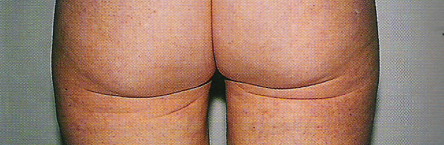 엉덩이인대손상이미지1.jpg