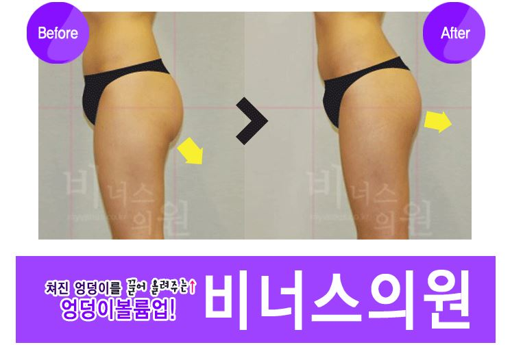 엉덩이 볼륨업2.JPG
