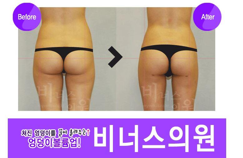 엉덩이 볼륨업3.JPG