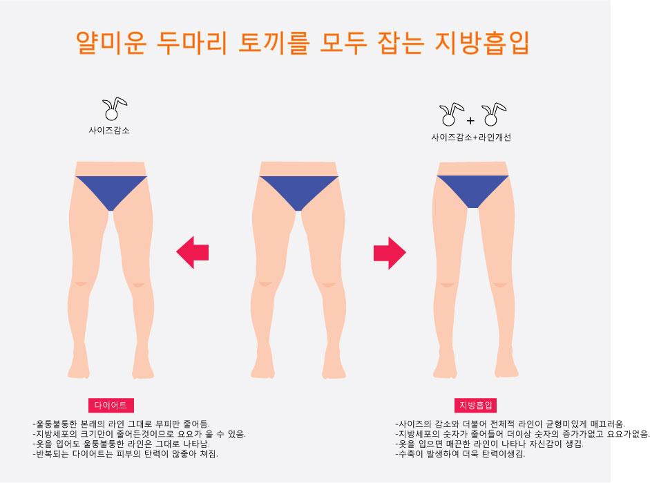 허벅지지방흡입과-다이어트.jpg