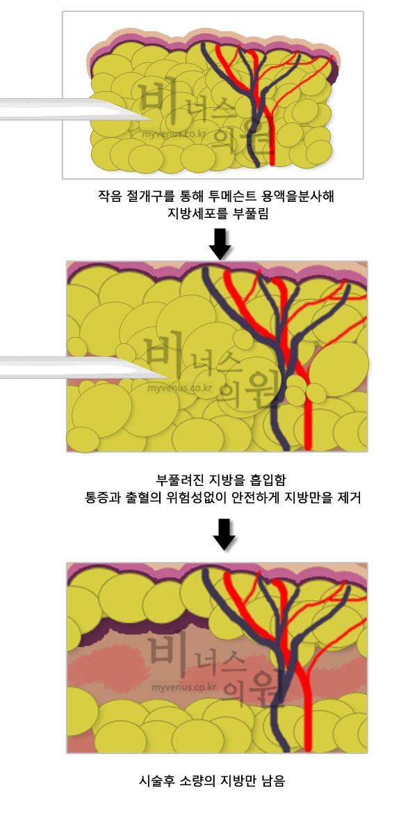 복부지방흡입1.jpg