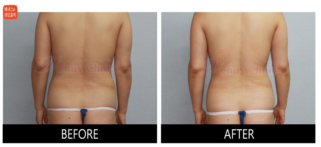 case1_abdomen_maximer3.jpg