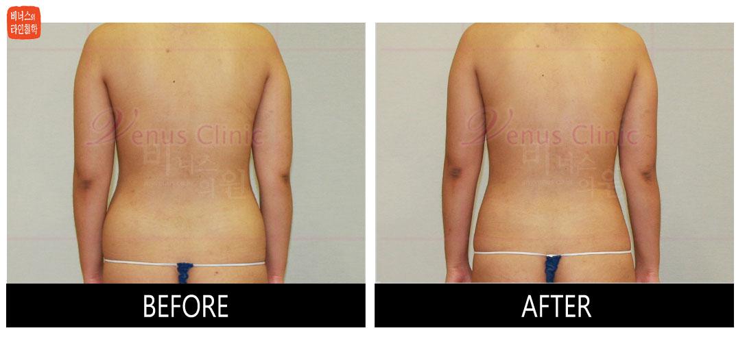 case3_maximer_abdomen (3).jpg
