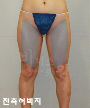 thigh_maximer 1.jpg