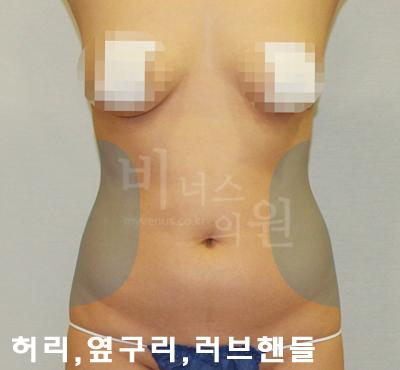 abdomen_primium 3.jpg