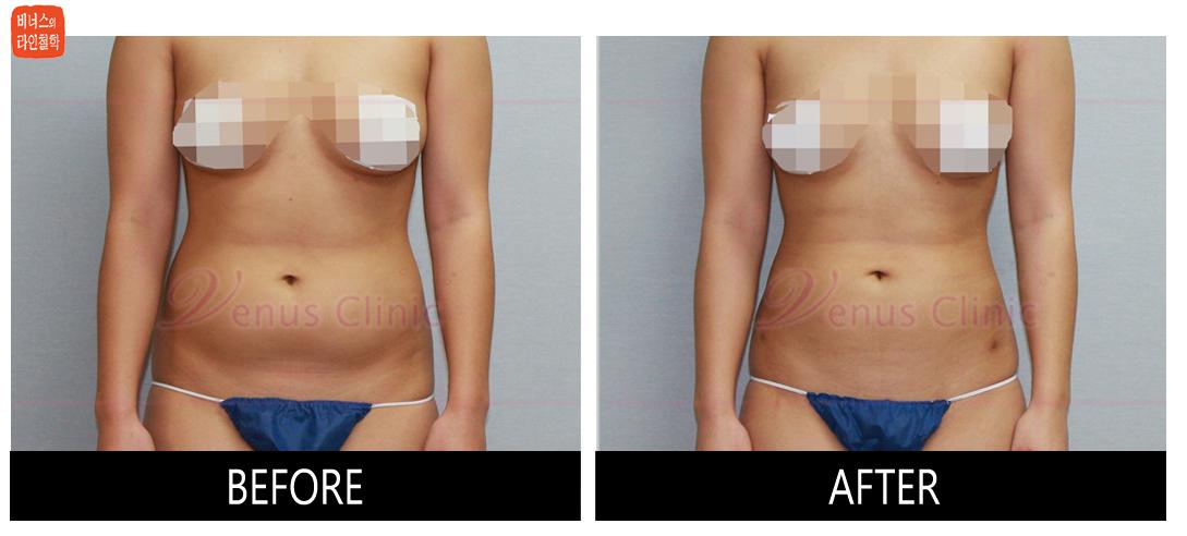 case3_abdomen1.jpg