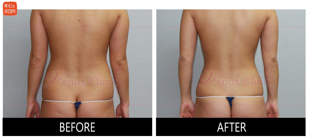 case3_abdomen3.jpg