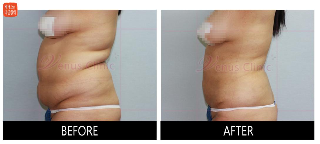 case1_abdomen2.jpg
