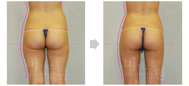 thigh_primimum 1.jpg