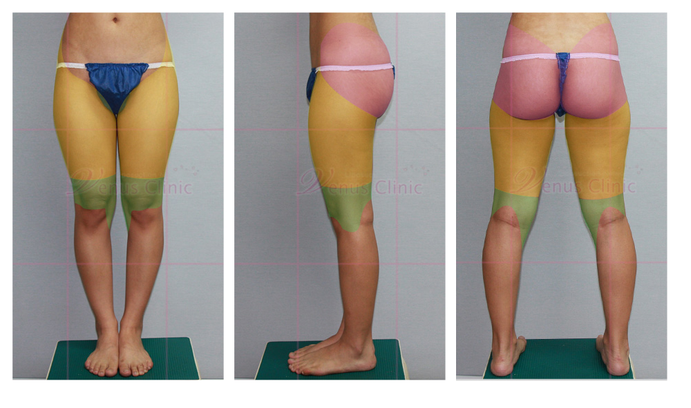 design_thighs1.jpg