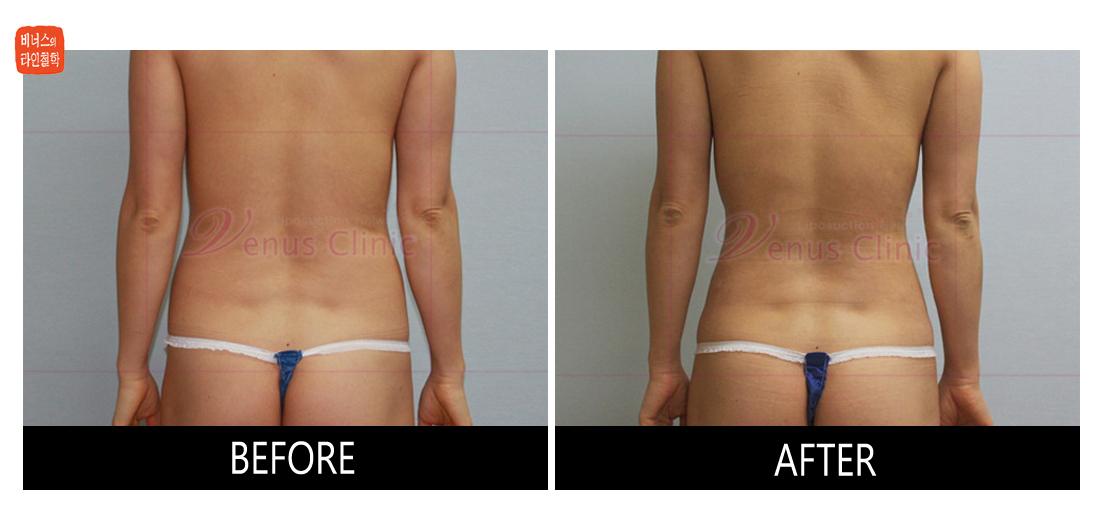 case1_abdomen_waist1.jpg
